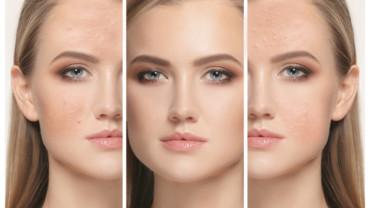 Maquillaje y Acné: los mejores trucos y consejos